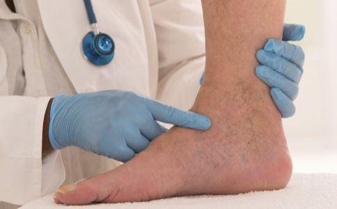 血栓闭塞性脉管炎是什么 血栓闭塞性脉管炎怎么诊断 血栓闭塞性脉管炎如何治疗