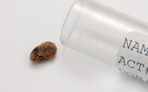 肾结石的原因 肾结石怎么回事 肾结石怎么治疗