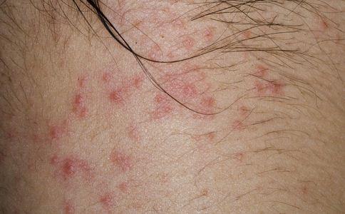 冬季五大皮肤过敏原因 什么原因导致冬季皮肤过敏 冬季皮肤过敏的预防方法