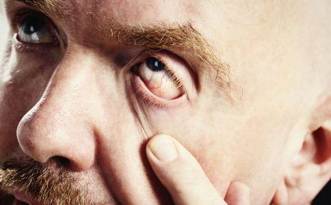 气候干燥护好眼睛 护眼细节要注意