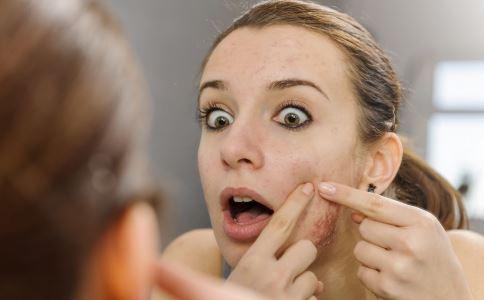 内分泌失调脸上长痘是什么原因 内分泌失调脸上长痘怎么办 内分泌失调脸上长痘如何调理