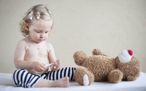 患上水痘如何控制效果好 怎么预防水痘 如何预防水痘