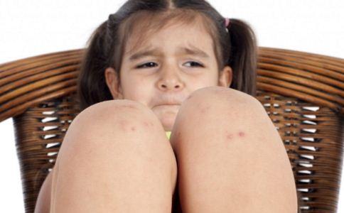 荨麻疹是怎么引起的 荨麻疹是什么原因造成 荨麻疹如何预防