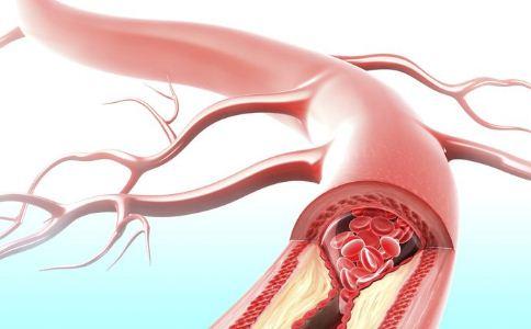 冬季怎么保护血管健康 哪些事情可以养护血管 冬天怎么养护血管