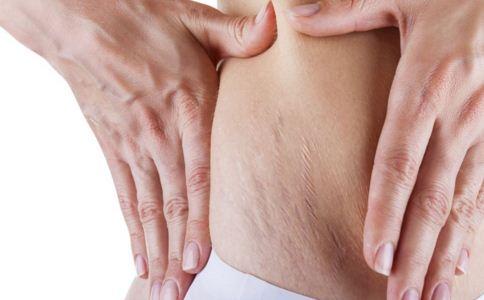如何去除妊娠纹 怎么对抗妊娠纹 妊娠纹怎么去除