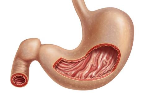 胃食管反流是什么 哪些易感染胃食管反流病 胃食管反流病要如何预防