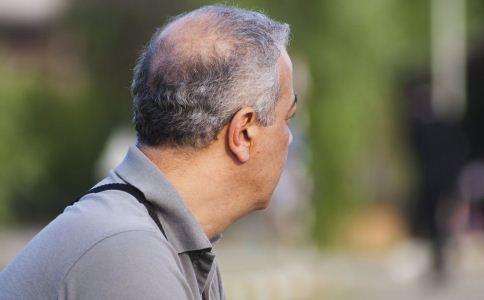 秃顶脱发可能遗传 该怎么防止脱发