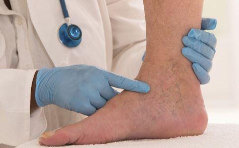 踝关节为什么容易扭伤 轻度踝关节扭伤怎么办 怎样预防踝关节扭伤
