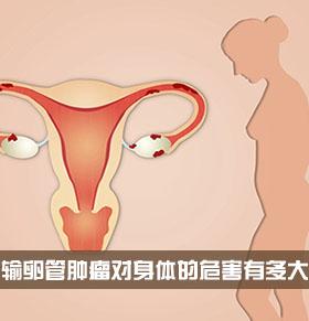 输卵管肿瘤对身体的危害有多大