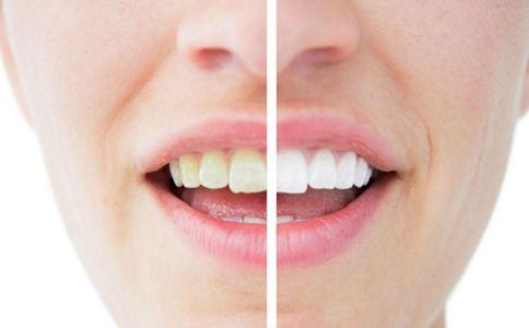 满口大黄牙要怎么处理 如何美白牙齿 牙齿美白怎么做
