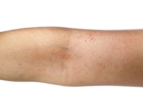 湿疹的危害是什么 湿疹有哪些危害 湿疹要注意什么