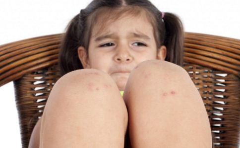 患上荨麻疹是什么原因 如何预防荨麻疹 怎么预防荨麻疹