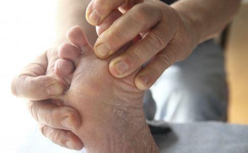 冬天如何治脚气 脚气怎么治疗 治疗脚气的偏方有哪些
