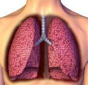肺结核如何预防 肺结核常识 肺结核严重吗