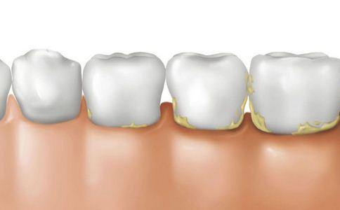 牙结石的危害 牙结石的预防 牙结石的治疗