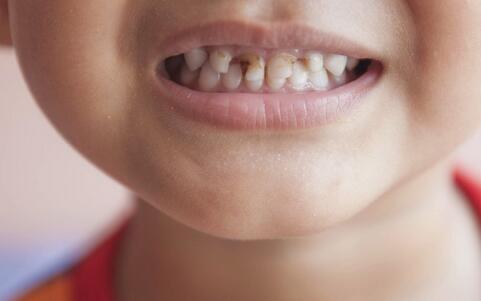 龋齿的危害 龋齿的易患人群 如何预防龋齿
