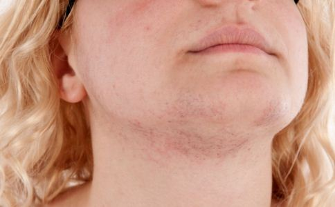 皮肤过敏是什么原因 皮肤过敏怎么办 皮肤过敏不能吃什么