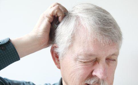 如何预防头发变白 头发变白怎么预防 预防白发吃什么好
