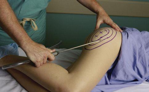 腿部吸脂是什么 腿部吸脂选哪些部位 腿部吸脂的方法是什么