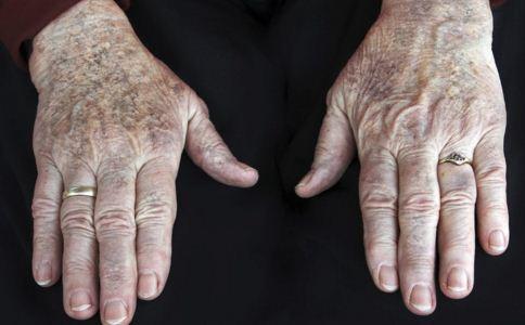 老年斑怎么预防 如何预防老年斑 怎么预防老年斑