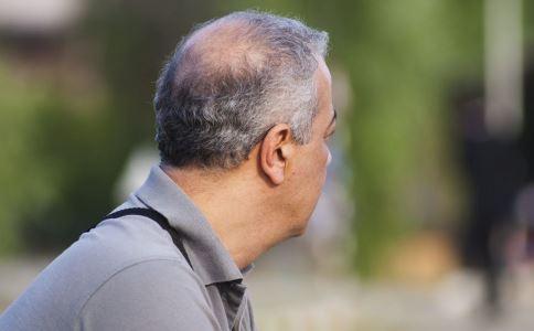 男人秃顶是什么原因 导致男人秃顶的原因有哪些 男人秃顶怎么预防