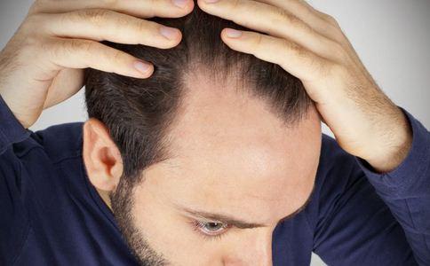 脱发更长寿上热搜 导致脱发的原因 什么原因导致脱发