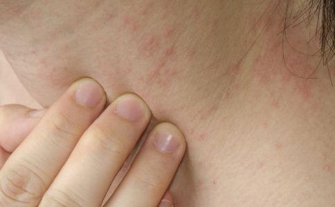 春季皮炎高发的四大预防措施