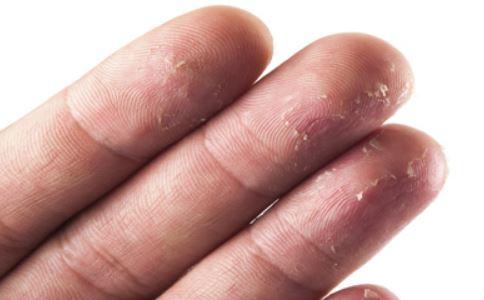 手掌脱皮会传染吗 手掌脱皮如何预防 手掌脱皮怎么治疗