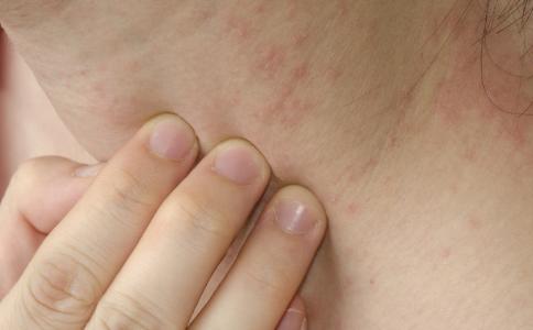 梅毒是怎么引起的 二期梅毒主要有哪些症状 二期梅毒会引起脱发吗