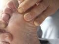 糖尿病坏疽的症状表现 下肢乏力劳累要注意