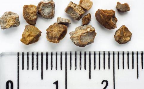 泌尿系结石老少通吃 如何预防泌尿结石 泌尿结石的病因