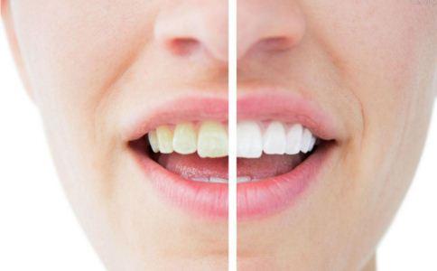 烤瓷牙能美白牙齿吗 美白牙齿有哪些方法 如何美白牙齿
