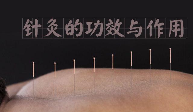 针灸的功效与作用 针灸治疗什么疾病 针灸可以减肥吗