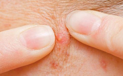 背部长痘痘是怎么回事 背部长痘的原因有哪些 背部为什么会长痘痘