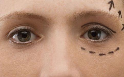 内切眼袋手术的恢复时长是多久 内切眼袋手术后注意什么 内切眼袋手术后如何护理