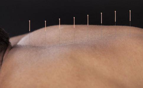 梅花针是什么 梅花针有什么作用 梅花针的功效与作用