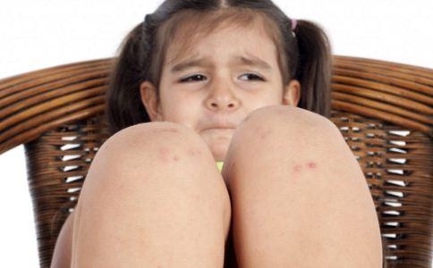 如何预防宝宝长湿疹 宝宝湿疹怎么办 宝宝湿疹如何护理