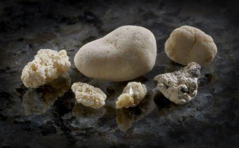 上班族得肾结石的原因 如何预防肾结石 肾结石的原因