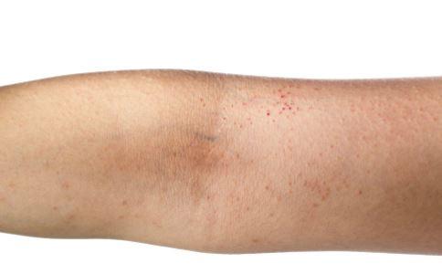 艾滋病皮疹和普通皮疹的区别是什么 什么是艾滋病皮疹 什么是普通皮疹