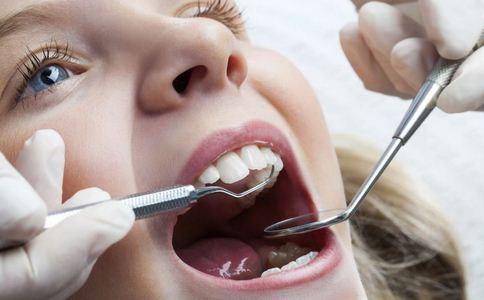 洗牙对牙齿好吗 洗牙注意什么好 洗牙注意哪些事