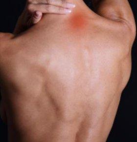 患上颈椎病怎么办 按摩哪里能缓解颈椎病 如何预防颈椎病