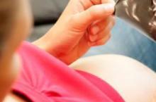 孕期为什么要做B超 可以检查什么