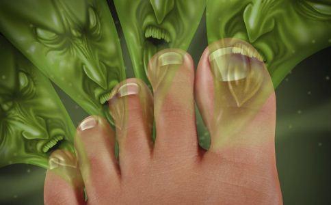 哪些偏方能治疗脚气 治疗脚气的偏方有哪些 哪些原因会引起脚气