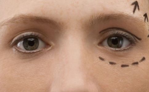 韩式祛眼袋风险大吗 韩式祛眼袋安全吗 哪些人适合做韩式祛眼袋