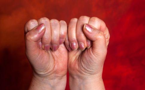 如何预防手足癣 手足癣是什么 哪些人容易得手足癣