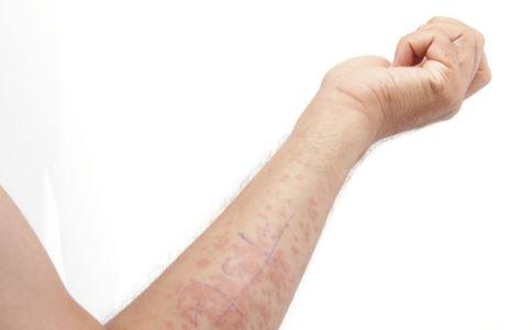 春季湿疹高发 湿疹怎么治疗 治疗湿疹最快方法