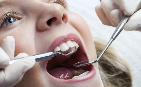 网传洗牙会损坏牙齿 洗牙等于美白牙齿 洗牙会导致牙齿过敏