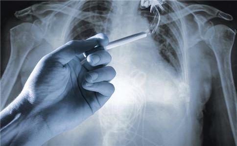 肺癌要怎么诊断 引起肺癌的原因 如何预防肺癌