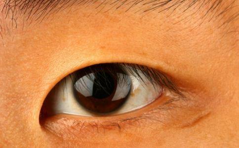 眼部整形有哪些 眼部整形适合哪些人 眼部整形后注意什么