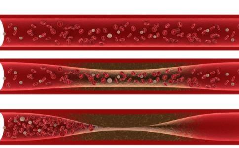 全国血管健康日主题 全国血管健康日由来 如何预防心血管疾病